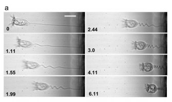 Power-limited contraction dynamics of Vorticella convallaria: an ultrafast biological spring