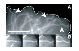 Microtubules can bear enhanced compressive loads in living cells because of lateral reinforcements