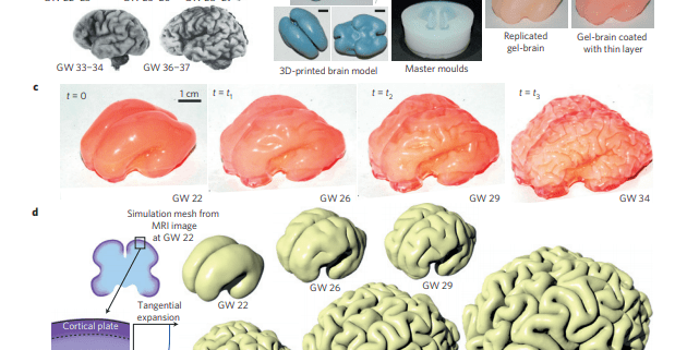 On the growth and form of cortical convolutions