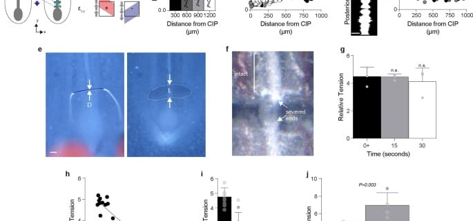 Molecular control of macroscopic forces drives formation of the vertebrate hindgut
