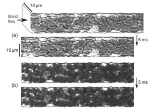 Hydrodynamics of hemostasis in sickle-cell disease