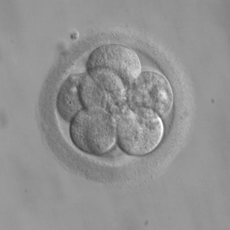 8-cell embryo, three days after fertilization (WikiCommons)